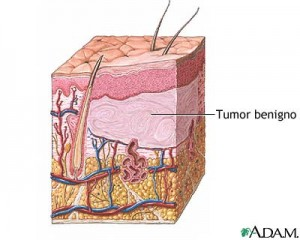 TumorBenigno